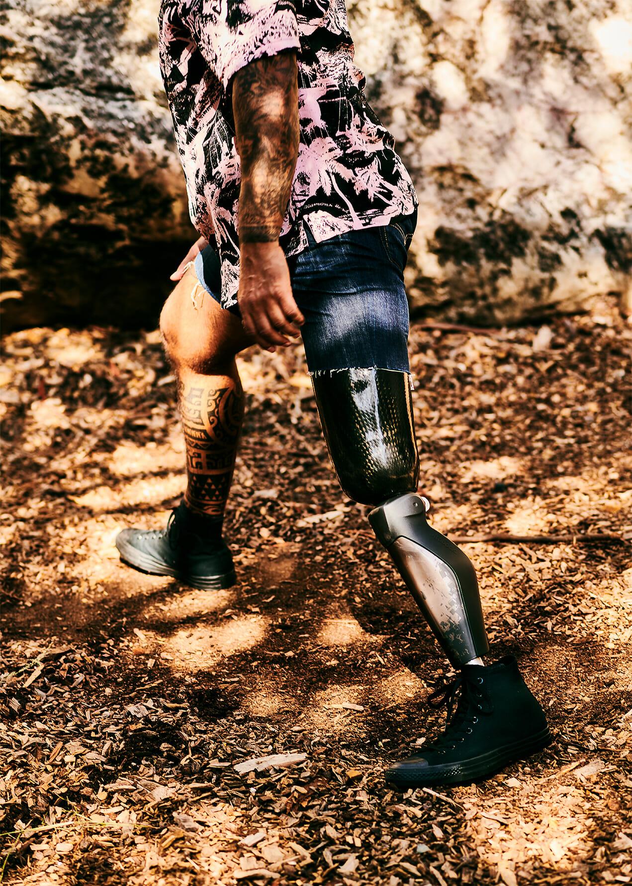 Steven Medeiros' prosthetic leg